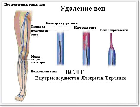 endovascular-laser-therapy2.jpg
